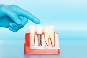 Dentist pointing to model of dental implants in Marshall