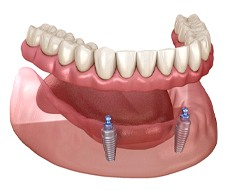 3D illustration of implant-retained lower dentures near Arkansas