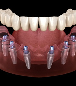 Illustration of implant-supported denture on top of six dental implants