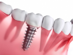 single dental implant in gums