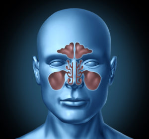 image of the sinuses