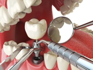 dental implant being put together