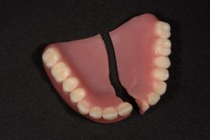 Broken denture in Marshall, in need of repair or replacement